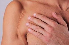 Comment rendre ses cicatrices moins visibles