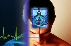 Épilepsie: les mathématiques au secours de la recherche