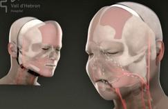 Greffes de visage, une médecine d'exception