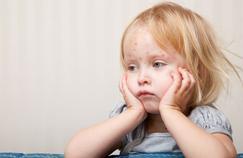 Nombre élevé de cas de varicelle en France