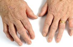 Des traitements efficaces contre la goutte