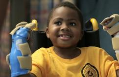 Première double greffe de mains sur un enfant