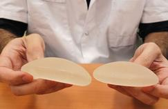 Les prothèses mammaires associées à un type rare de cancer