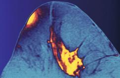 Cancer : à qui sont destinés les tests génétiques ?