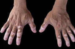 Le vitiligo, cette maladie qui éclarcit la peau