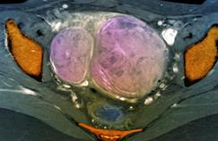 Fibromes utérins: quels avantages pour l'embolisation?