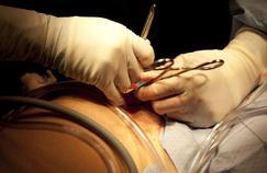 L'opération de l'appendicite est-elle banale?