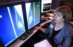 Cancers féminins: fortes inégalités dans le monde