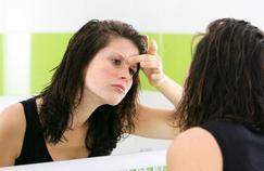 Traitements contre l'acné : les nouvelles recommandations