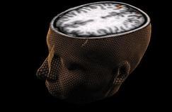 L'étonnante plasticité du cerveau humain
