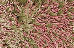 Cancer colorectal: la piste bactérienne se confirme