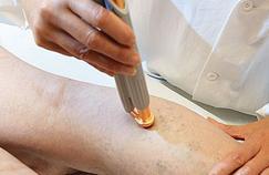 Prendre en charge les varices sans chirurgie invasive