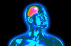 La neurostimulation testée contre les migraines