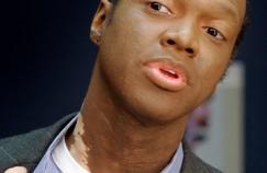 Maladie de peau: vers un remède contre le vitiligo