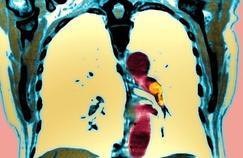 Le poids sous-estimé des embolies pulmonaires