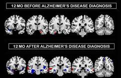 Alzheimer: des dégâts plus précoces chez les femmes