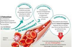 L'hémophilie de mieuxen mieux prise en charge