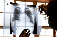Évry: un collège ferme pour cause de tuberculose