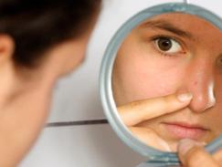 Un traitement contre l acné mis en cause après un suicide 42ebf8e48d0