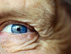 Alimentation et vieillissement oculaire