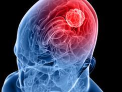 Cancer de la tête/du cerveau