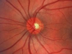 Dégénérescence maculaire (DMLA)