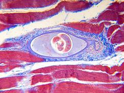 Tripanosomiase