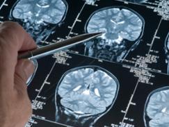 Scanner cérébral et rachidien