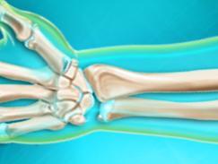 Fracture de l'extrémité inférieure du bras