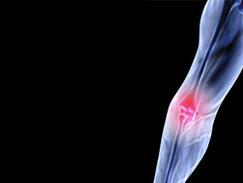 Dépistage de l'ostoporose