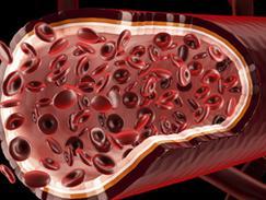 Thromboses veineuses et artérielles