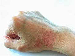 Lupus érythémateux chronique