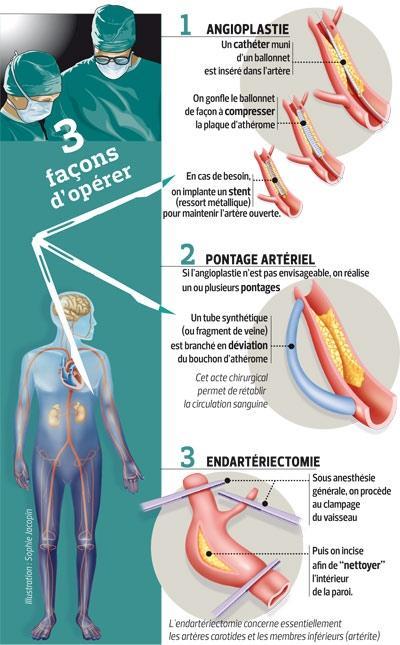 stents coronariens et diabète