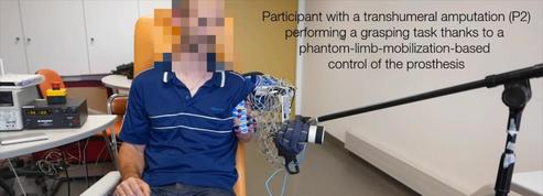Une prothèse de bras décode les mouvements d'un membre fantôme