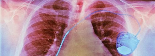 Qu'est-ce que la fibrillation auriculaire?