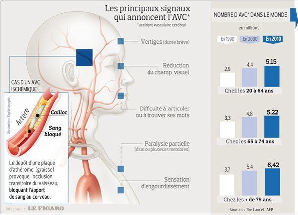 problèmes vasculaires cérébraux