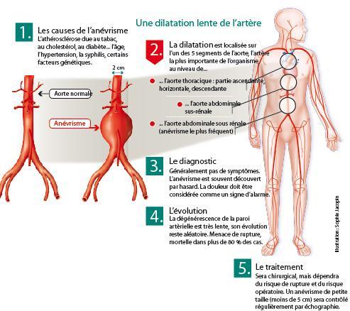 Infographie présentant le mécanisme de l'anévrisme de l'aorte.