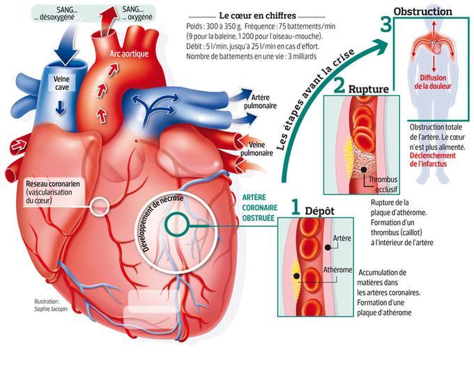 Mécanisme de l'infarctus