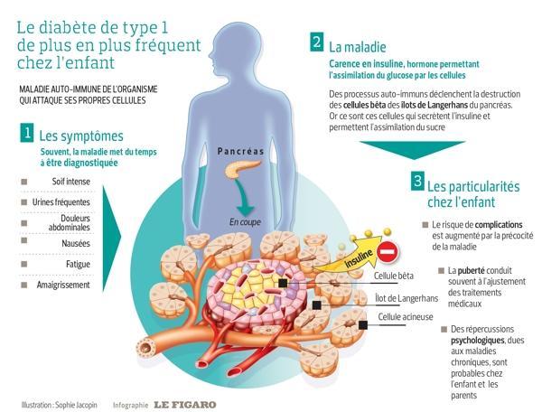 Cette infographie présente les signes du diabète sucré de l'enfant