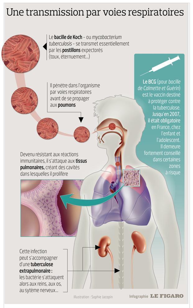 Cette infographie montre comment est transmise la tuberculose