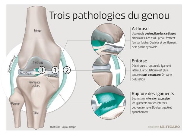 Cette infographie illustre les différentes douleurs au genou