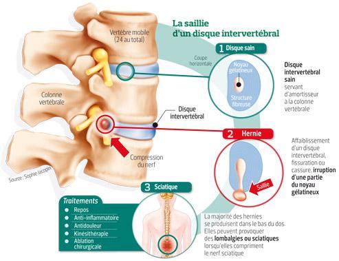 Cette infographie présente le mécanisme de la lombalgie