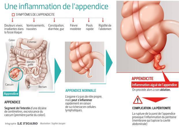 Il s'agit d'un schéma représentant l'inflammation de l'appendice