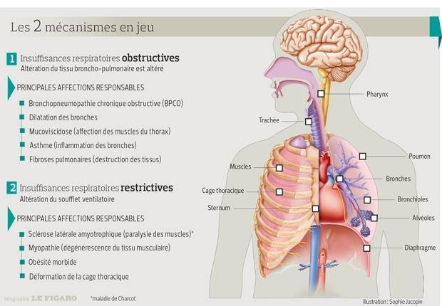Ce schéma représente les maladies des bronches