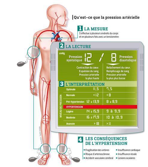 Cette infographie présente les deux types de mesure de la pression artérielle.