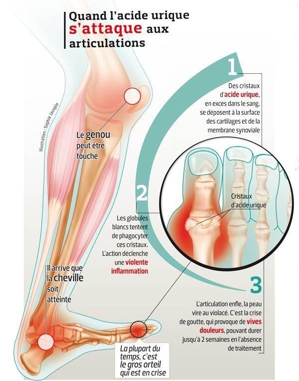 Ce schéma présente les conséquences d'un taux d'acide urique trop élevé dans les articulations