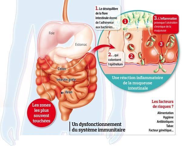 Ce schéma illustre les problèmes de flore intestinale