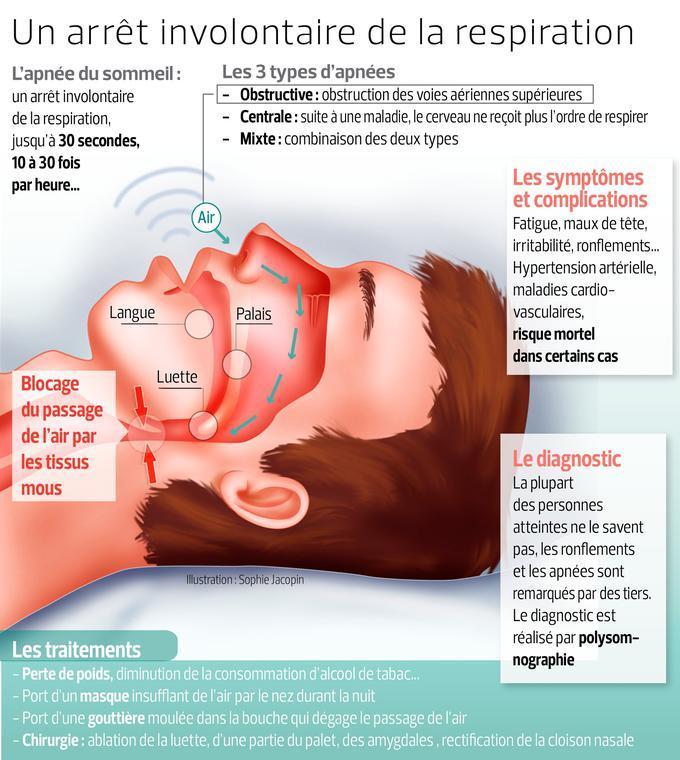 Ce schéma représente le mécanisme intervenant lors de l'apnée du sommeil