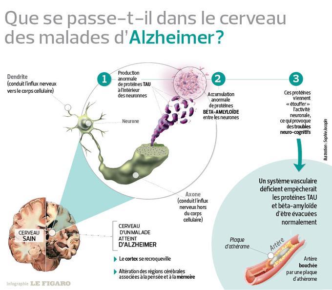 Que se passe-t-il dans le cerveau des malades d'Alzheimer ?