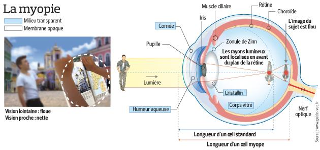 Ce schéma décrit le mécanisme qui entre en jeu dans la myopie